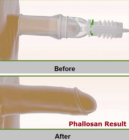 Phallosan-forte-review-results-gains-does-phallosan-forte-work-real-results-reviews-penis-enlargement-system-device-before-after-becoming-alpha-male